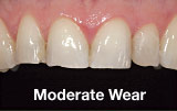 Moderate tooth wear before