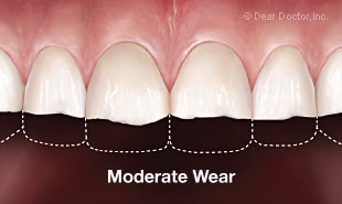 Moderate tooth wear
