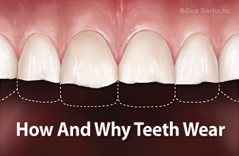 How and why teeth wear