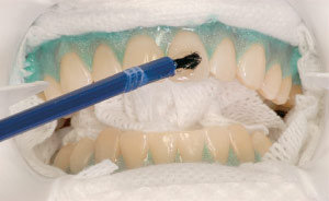 Applying teeth whitening solution with brush in dental office.