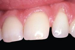 Dark tooth after teeth whitening.
