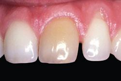 Dark tooth before teeth whitening.