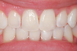 After teeth whitening.