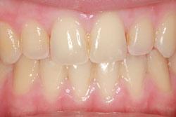 Before teeth whitening.