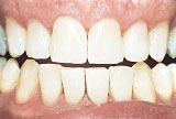 After teeth whitening - Aging example.