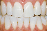 After teeth whitening - Genetics example.