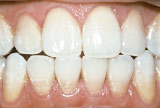 After teeth whitening - Tetracycline example.