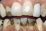Before teeth whitening - Smoking stains example.