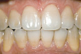 Before teeth whitening - Tetracycline example.