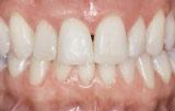 After orthodontics closeup.