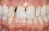 Before orthodontics closeup.