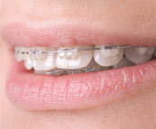 An example of clear orthodontic braces.