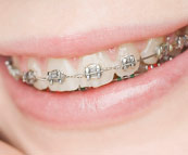 An example of metal braces.