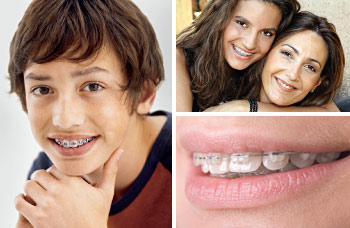 The magic of orthodontics.