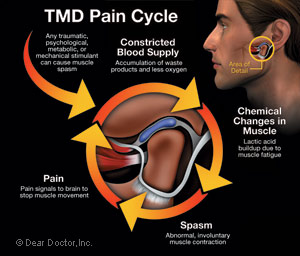 TMD pain cycle diagram.