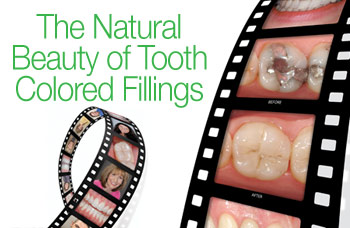 Tooth colored fillings in dentistry.