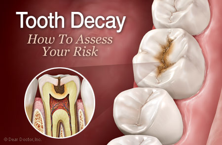 Tooth decay risk.