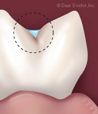 Sealant protecting the groove of a tooth.