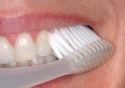 Toothbrush technique.