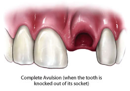 Avulsed tooth.