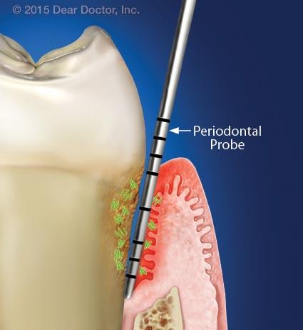 Diseased periodontal pocket.