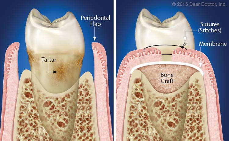 Traditional periodontal therapy illustration.