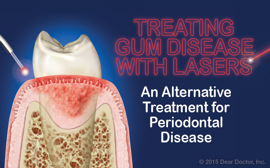 Treating gum disease with lasers.