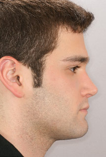 Understanding Aging Orthodontic And Orthognathic Treatment