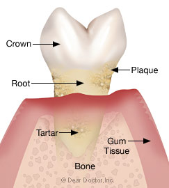 Stage 4 - Advanced periodontitis.