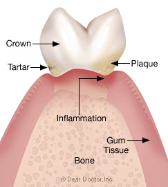 Stage 2 - Early periodontitis.