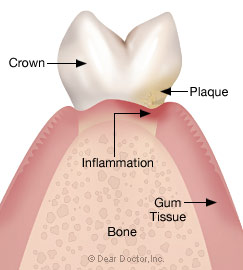 Stage 1 - Gingivitis.