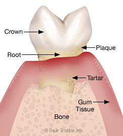 Stage 3 - Moderate periodontitis.