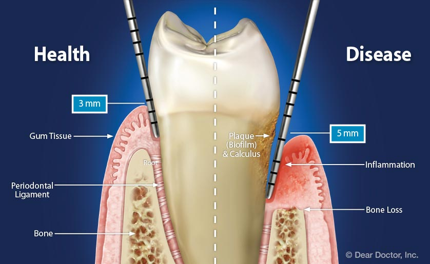 Health vs. Disease - Periodontal Pockets.