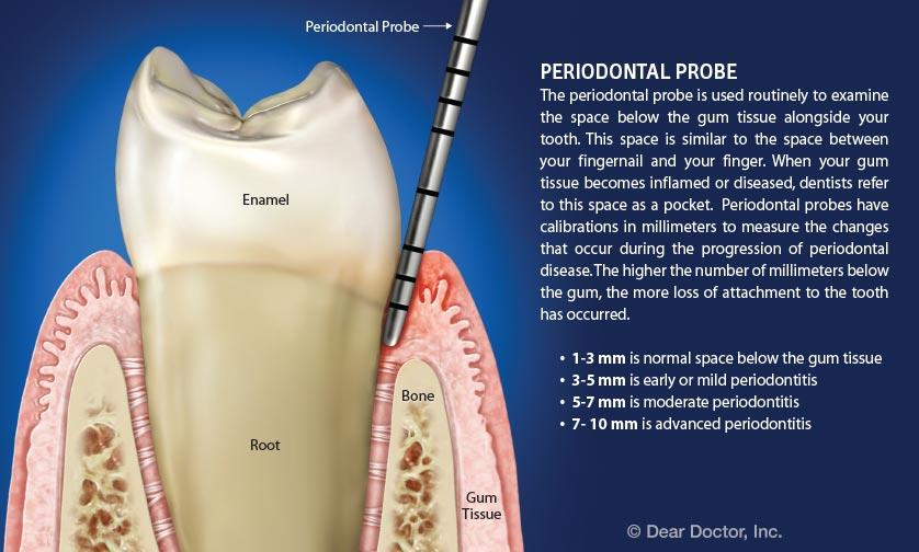 Periodontal probe.