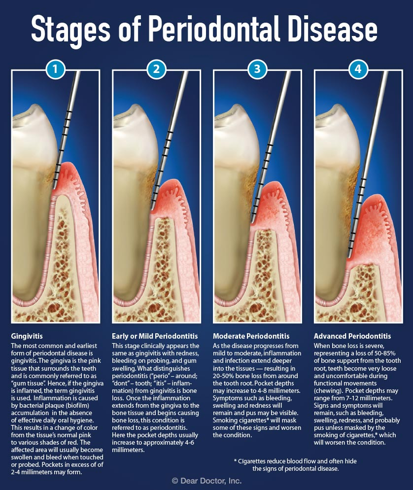 Understanding Periodontal Pockets