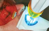 Teeth Whitening - Figure 9.