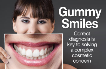 Gummy smiles.