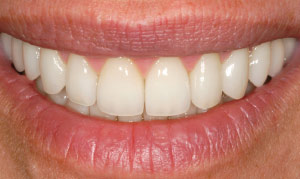 After periodontal plastic surgery.