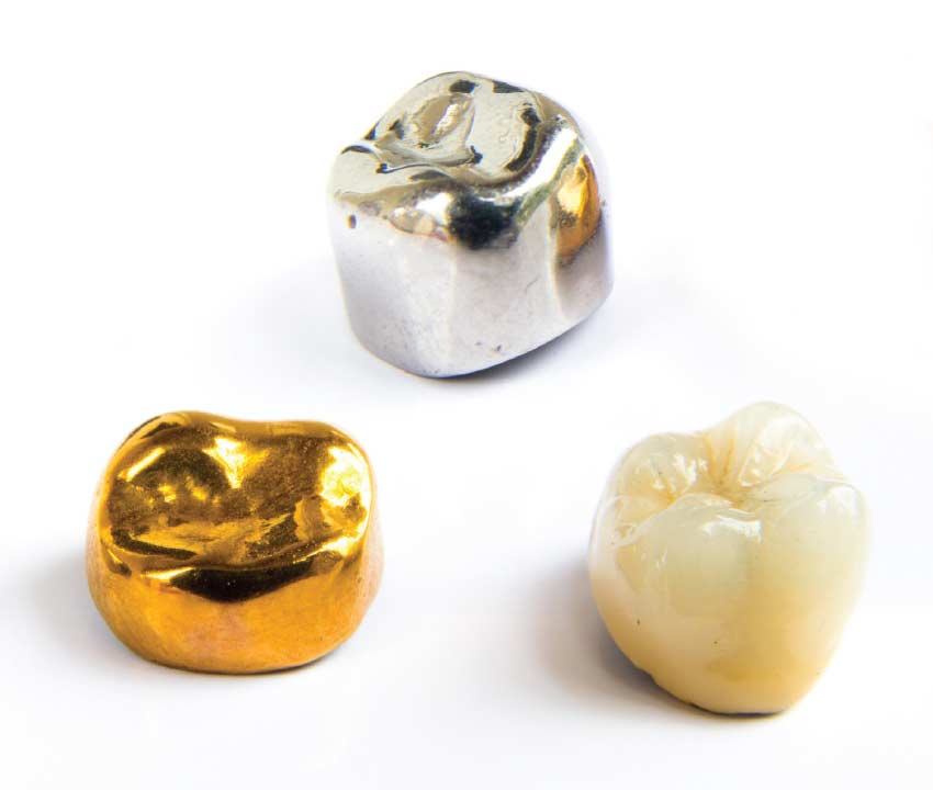 Dental crown materials.