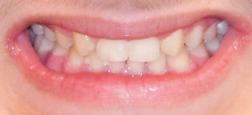 After - orthodontic treatment.
