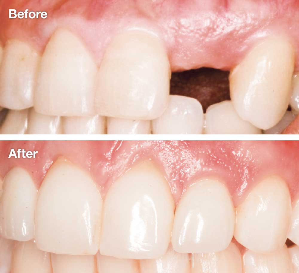 Missing lateral incisors - Before and after dental implants.