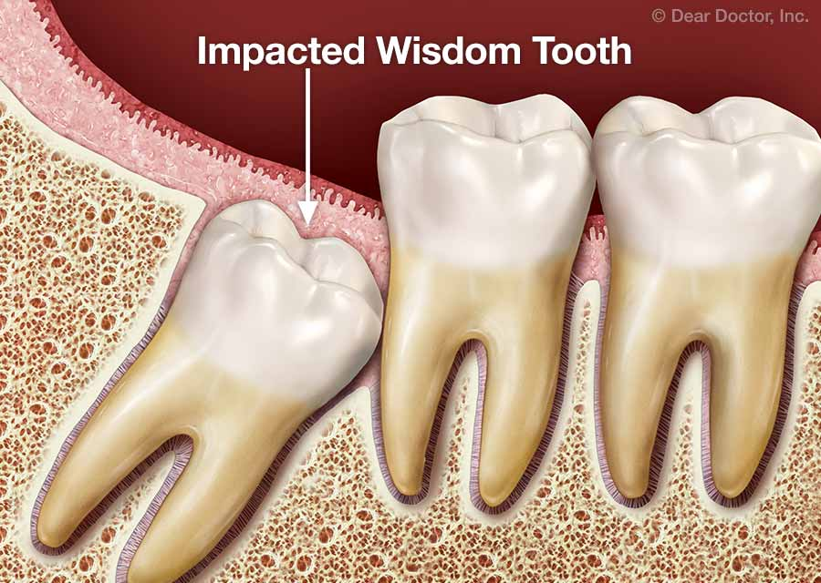 Wisdom teeth treatment options.