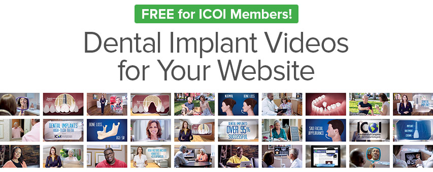 Dental Implant Videos for Your Website.