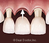 Crowns and Bridges: Two Paths to Tooth Restoration