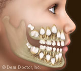 When Your Child Needs Dental Treatment