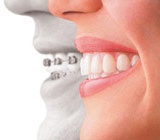 Alternatives to Traditional Braces for Adult Orthodontics