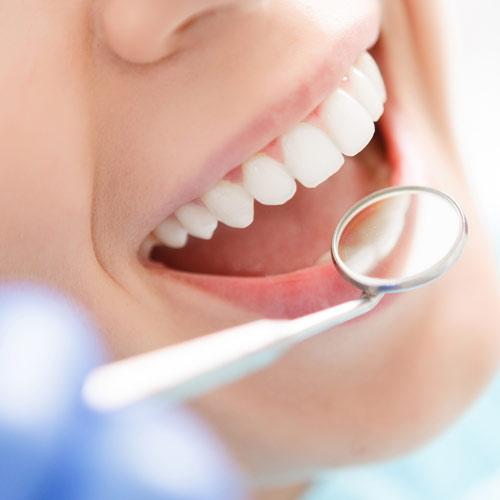 3 Steps to Finding the Right Cosmetic Dentist for You