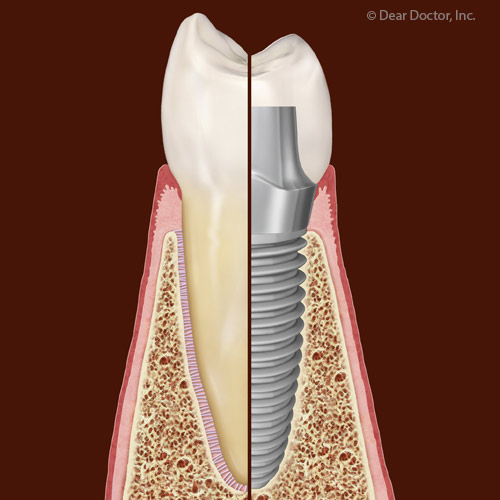 Although Rare, Dental Implant Failures Are Tied to Certain Health Factors