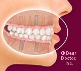 Dental Implants—Your Third Set of Teeth