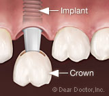 Dental Implants: Your Premier Option for Tooth Replacement